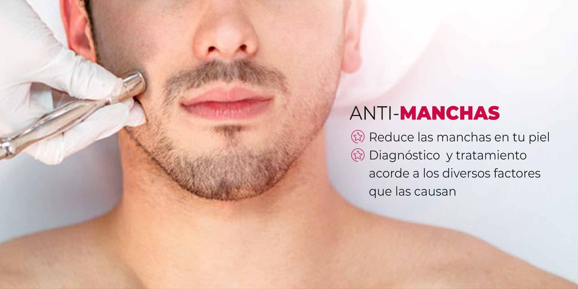 Tratamiento para manchas en la piel en hombres en CDMX