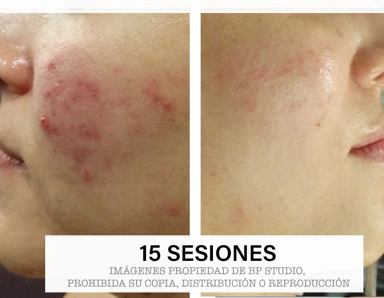 tratamiento mejor acne