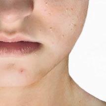 facial para piel grasa