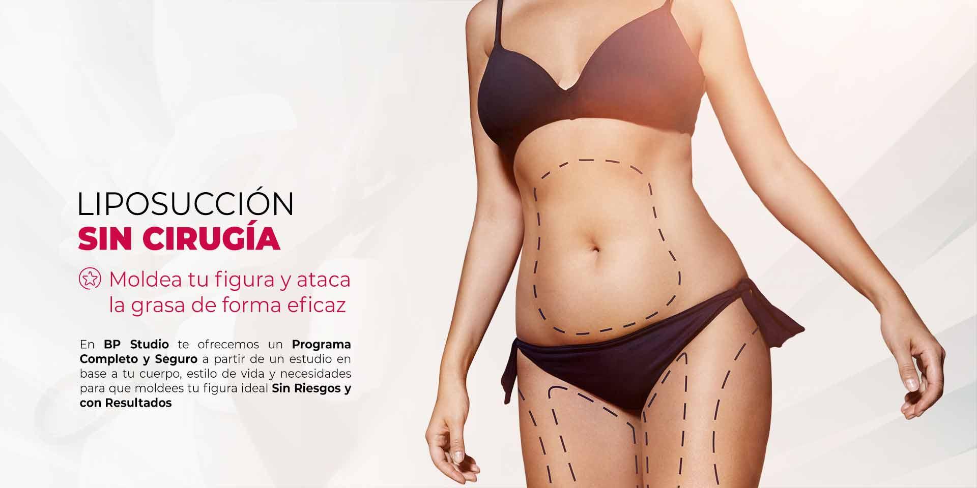 Liposucción sin cirugía en CDMX