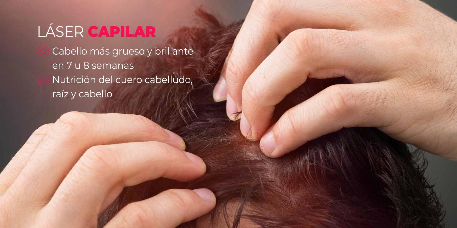 tratamiento para la perdida del cabello en CDMX