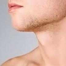 flacidez facial en hombres
