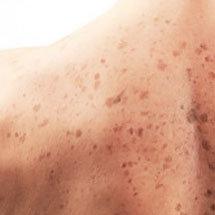 hiperpigmentación de la piel
