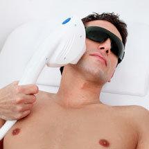 tratamiento para hiperpigmentaciónen la piel en hombres