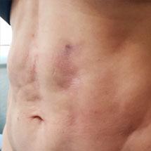 fibrosis post-operatoria