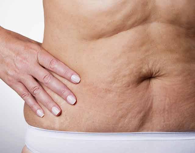flacidez abdominal post-parto